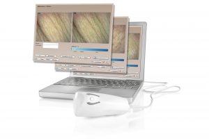Derma-Visualizer-Monitor_300